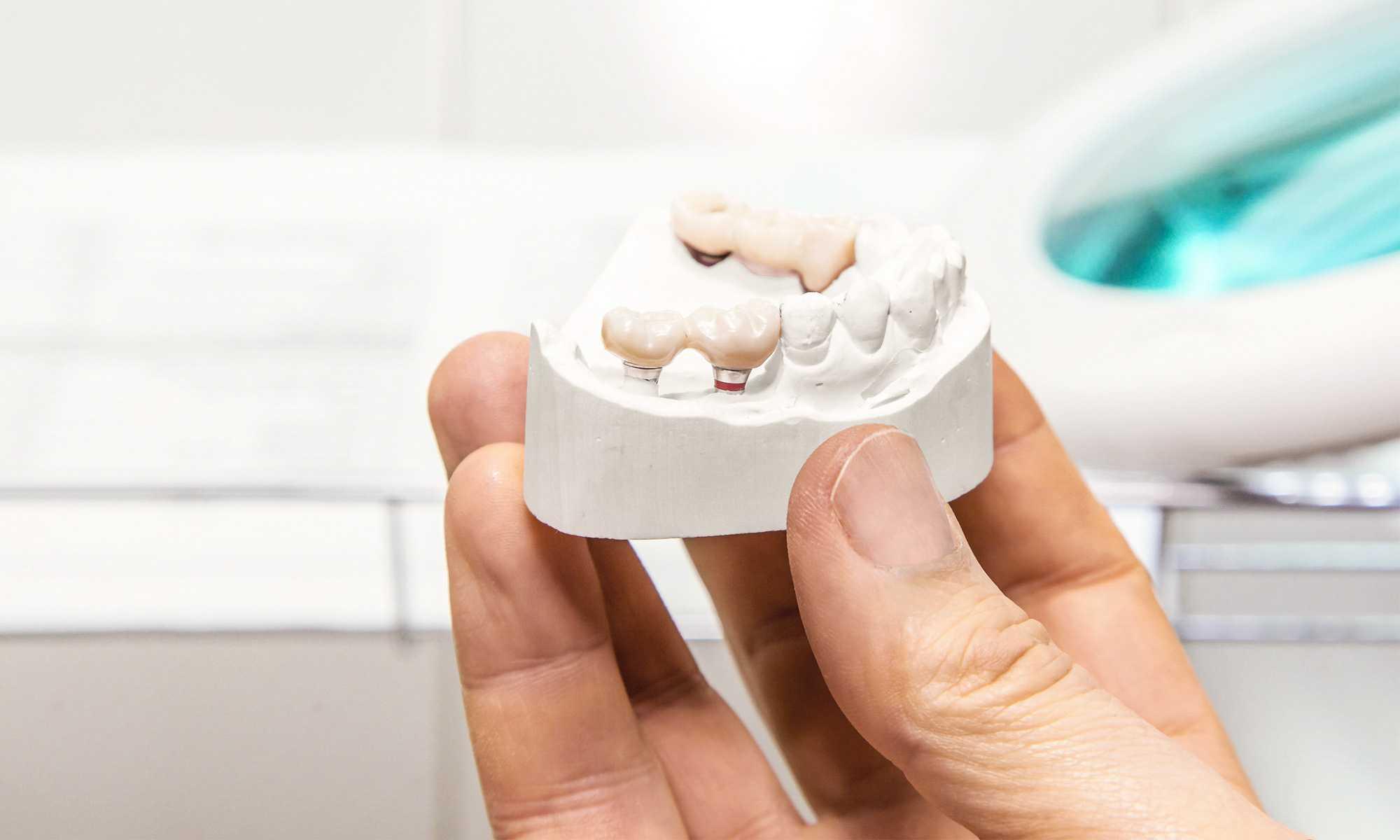 ODD-Zahnimplantate-Mood-1