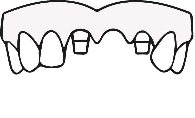ODD-Zahnimplantate-Eingriff-2