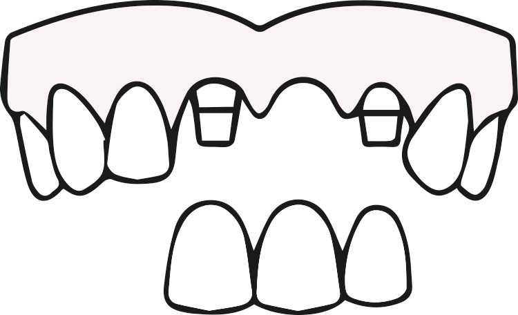 ODD-Zahnimplantate-Eingriff-3