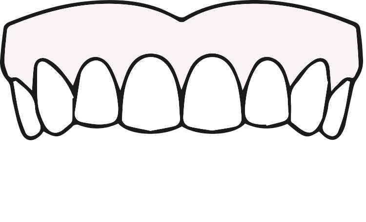 ODD-Zahnimplantate-Eingriff-4