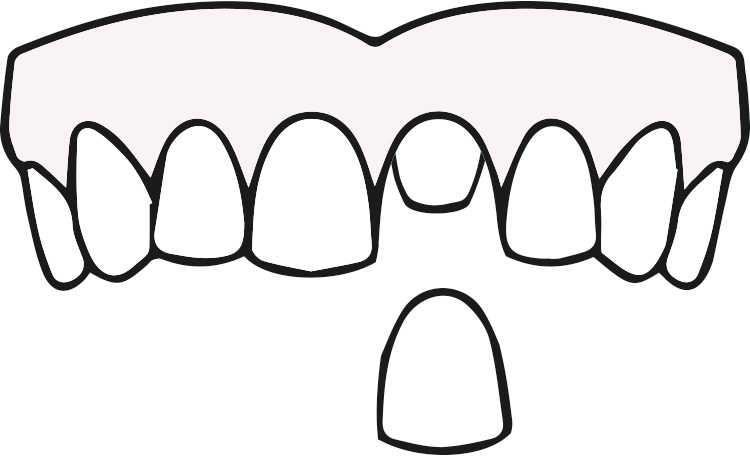 ODD-Zahnersatz-Krone