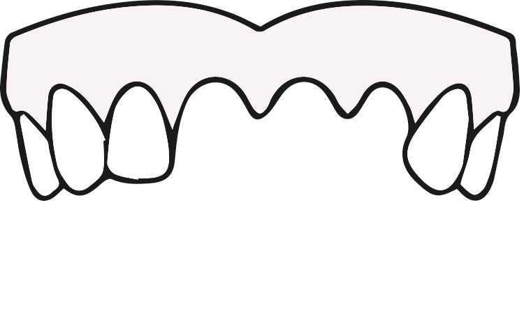 ODD-Zahnimplantate-Eingriff-1