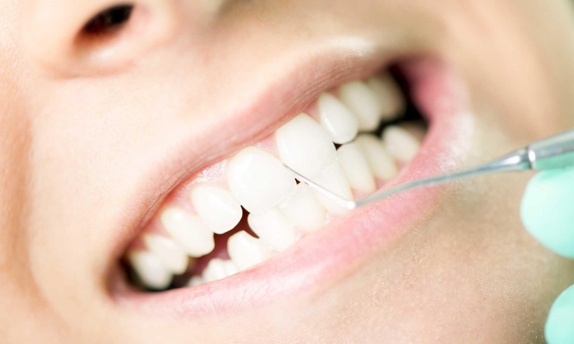 ODD-Professionelle-Zahnreinigung